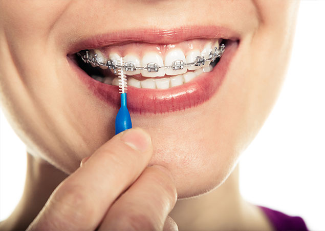 how-to-brush-your-braces